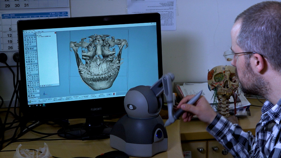 Tratamento de deformidades faciais utilizando planejamento 3D e impressão de implantes específicos para pacientes