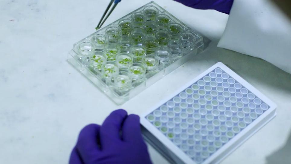 Forward Genetic Screen Using Transgenic Calcium Reporter Aequorin to Identify Novel Targets in Calcium Signaling