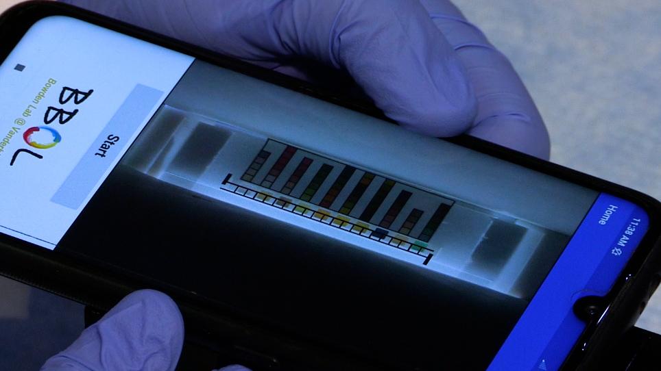 Urinalysis de dipstick de baixo custo e controlados por volume para testes domésticos
