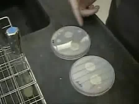 Assay for Adhesion and Agar Invasion in S. cerevisiae