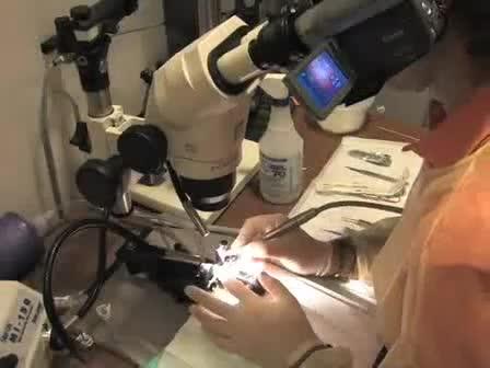 만성 뇌 영상에 대한 Craniotomy 외과 절차