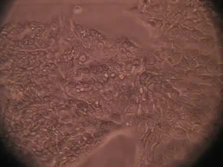 Trypsinizing and Subculturing Mammalian Cells