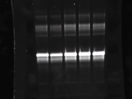 Séparation électrophorétique de protéines