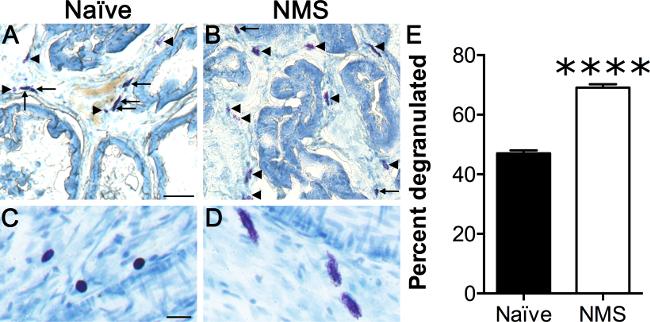 症候群 化 細胞 マスト 活性