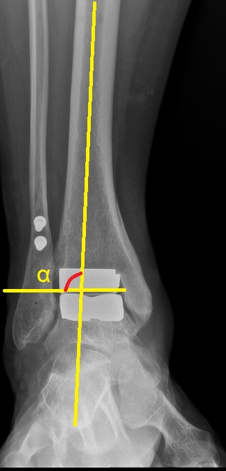 osteomielita bolii articulare)
