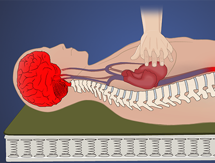 Basic Life Support:  Cardiopulmonary Resuscitation and Defibrillation