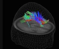 À l'aide de Diffusion Tensor Imaging dans le traumatisme crânien