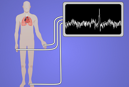 Acquisition and Analysis of an ECG (electrocardiography) Signal