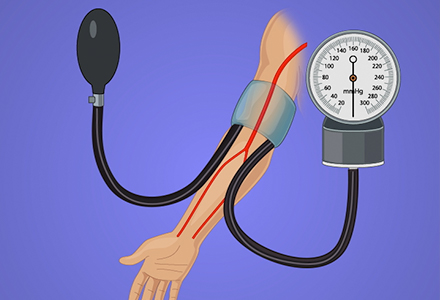 Noninvasive Blood Pressure Measurement Techniques