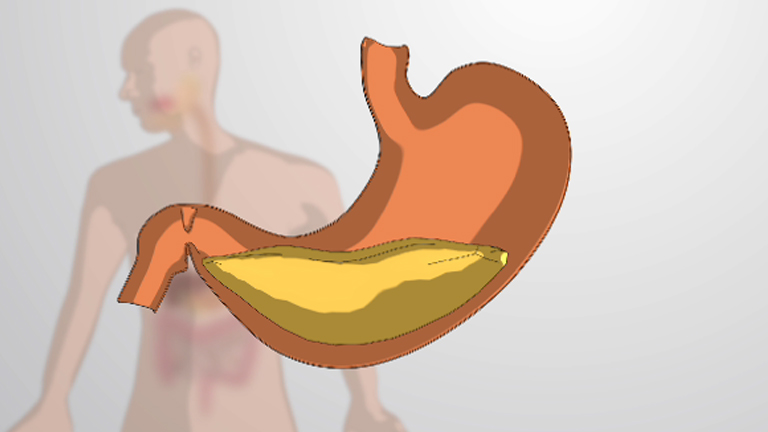 What is Monogastric Digestion?