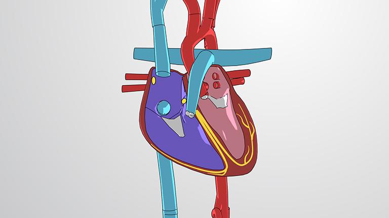 Der Herzkreislauf