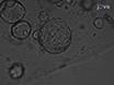 Un Protocolo de vídeo de la infección retroviral en Primaria Intestinal organoide Cultura
