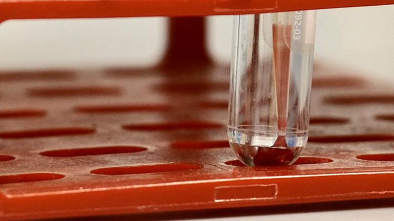 Ortotópico Implantación y Seguimiento de la célula inmune periférica en el modelo II-45 Singénico Rata Mesotelioma