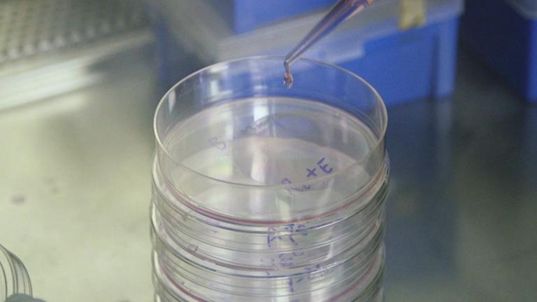 Identifizierung von intrazellulärer Induzierte in lebenden Zellen durch Interaktion Signalisierung mit Benachbarte Zellen, die eine programmierten Zelltods