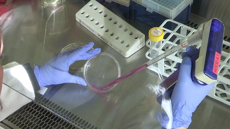 Das Studium der Zellzyklus-regulierten Genexpression durch zwei komplementäre Zellsynchronisationsprotokolle