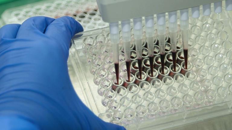 Proyección de nanopartículas bioactivas en células inmunológicas fagocíticas para inhibidores de la señalización de receptores de tipo Toll